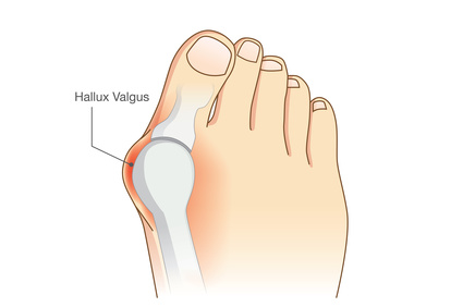 what\u0027s causing the sharp pain in my big toe footwebstar Diagram of Sesamoiditis